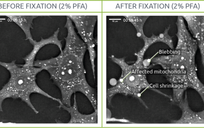 PFA fixation test: the effects on live cell imaging