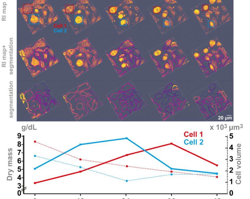 Quantitative Analysis of 3D Refractive Index Maps
