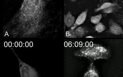 Cell death: 4 ways to die!