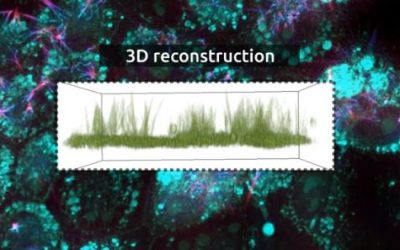 Cilia visualization in Xenopus cells