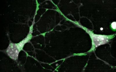 Mitochondrial trafficking in neurons