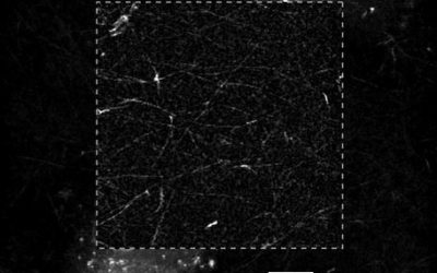 Marker-free visualization of fibrin network formation by MDA-MB-231 cells