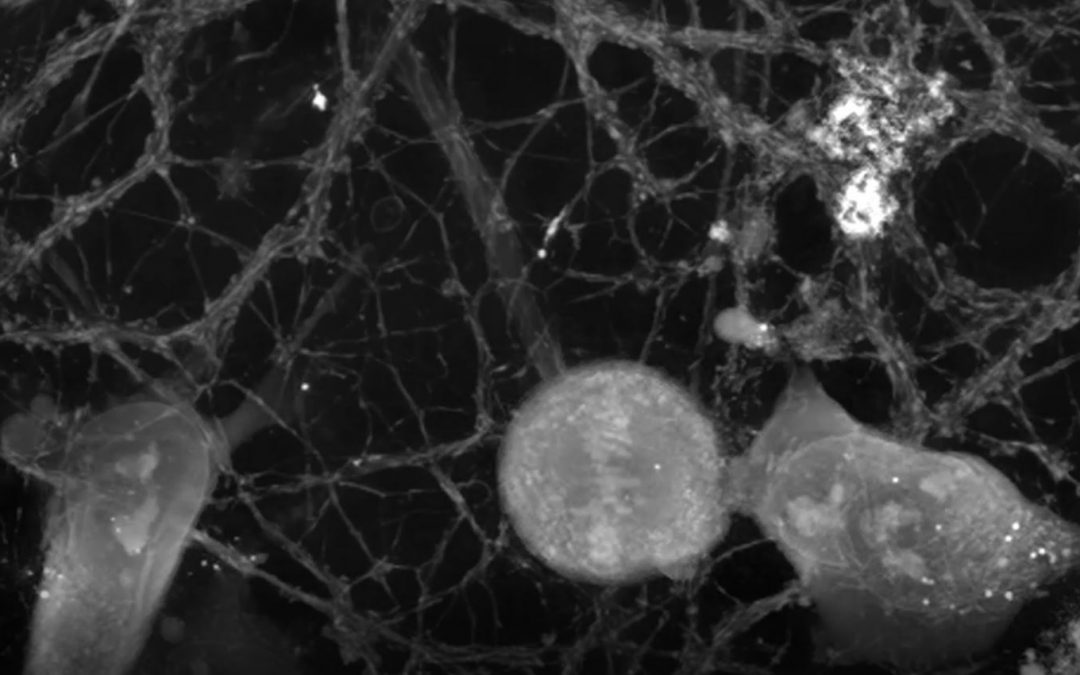 Nanolive label-free cell imaging captures microglia; neurons immune surveillance system hard at work
