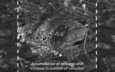 Chondrogenic differentiation of mesenchymal stem cells imaged live, using Nanolive's label-free, non-invasive imaging