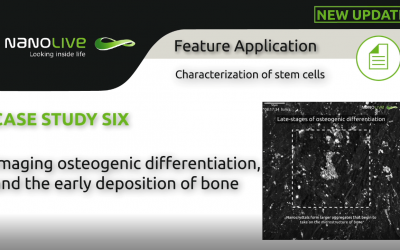 Imaging osteogenic differentiation, and the early deposition of bone
