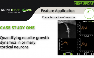 Label-free live cell imaging of primary cortical neurons, with a focus on quantifying neurite growth dynamics