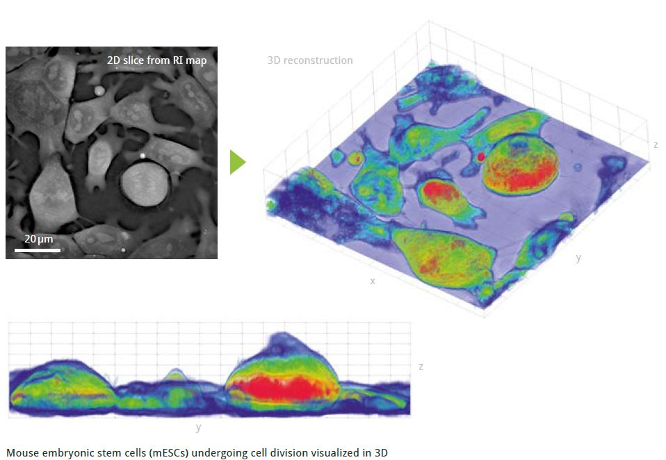 Label-free imaging: Possible with this ultimate three-dimensional live cell microscope