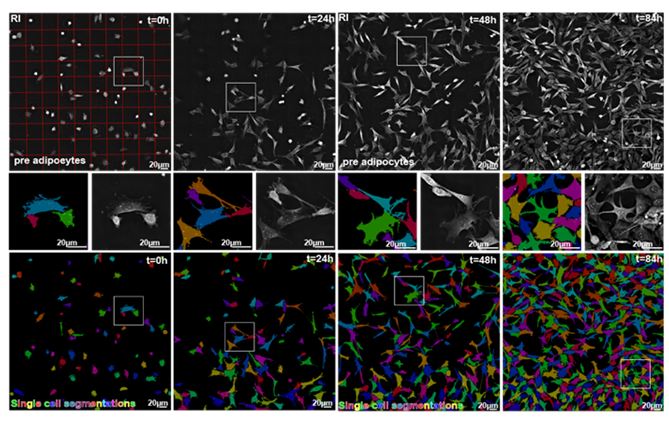 Image showing EVE Analytics precise segmentation