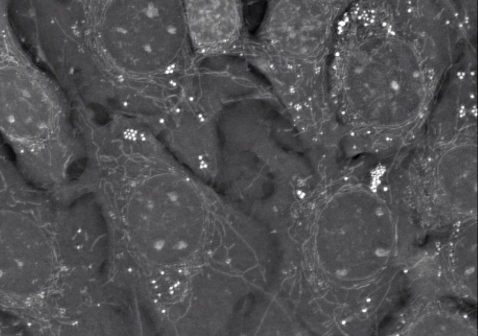 3D Live Cell Imaging presented at Dynamic Cell III in Manchester!