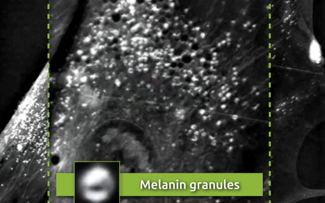 Non-invasive, label-free visualization of melanin granules using Nanolive cell imaging