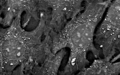 Webinar | Mitochondria and lipid droplets in the spotlight: Label free imaging of cell metabolism