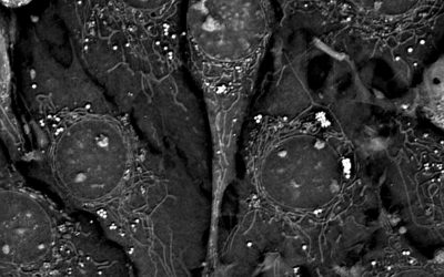 Long Term Live Imaging of Mouse Pre-adipocytes (48hrs): Revolutionary Label-free 3D Live Cell Microscope Makes It Possible