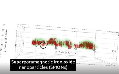 Superparamagnetic iron oxide nanoparticles (SPIONs) and Nanolive imaging: the perfect combination?