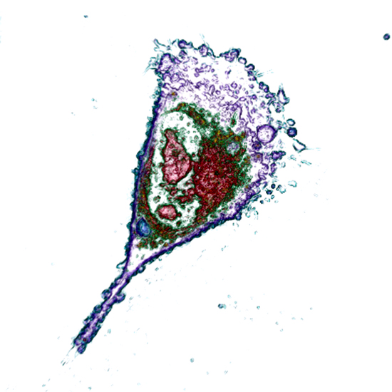 Apoptosis live cell imaging - label-free