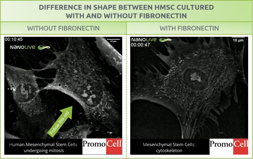 Cytoskeleton - With and without fibronectin