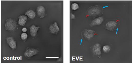 e-cigarette vapor exposed exposed neutrophils