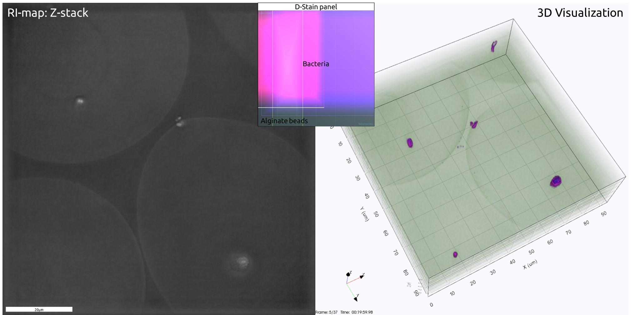 Bacteria stuffed gelballs › Nanolive #9B05C6