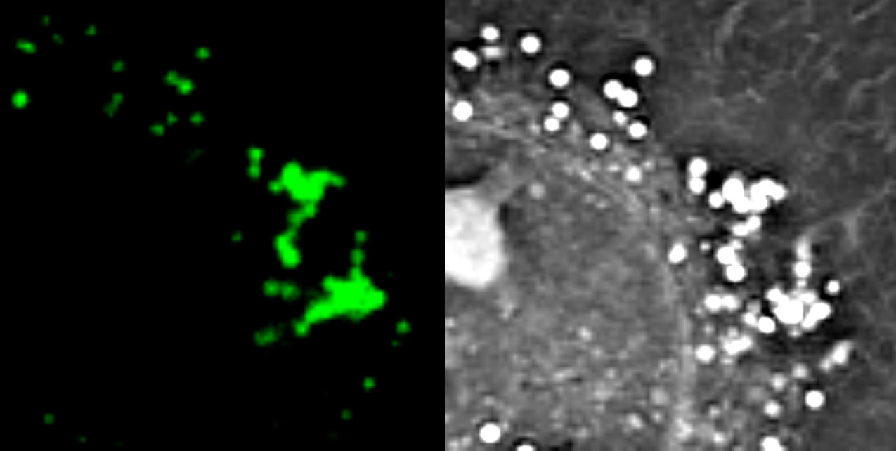 Nanolive live cell imaging microscope: lipid droplets